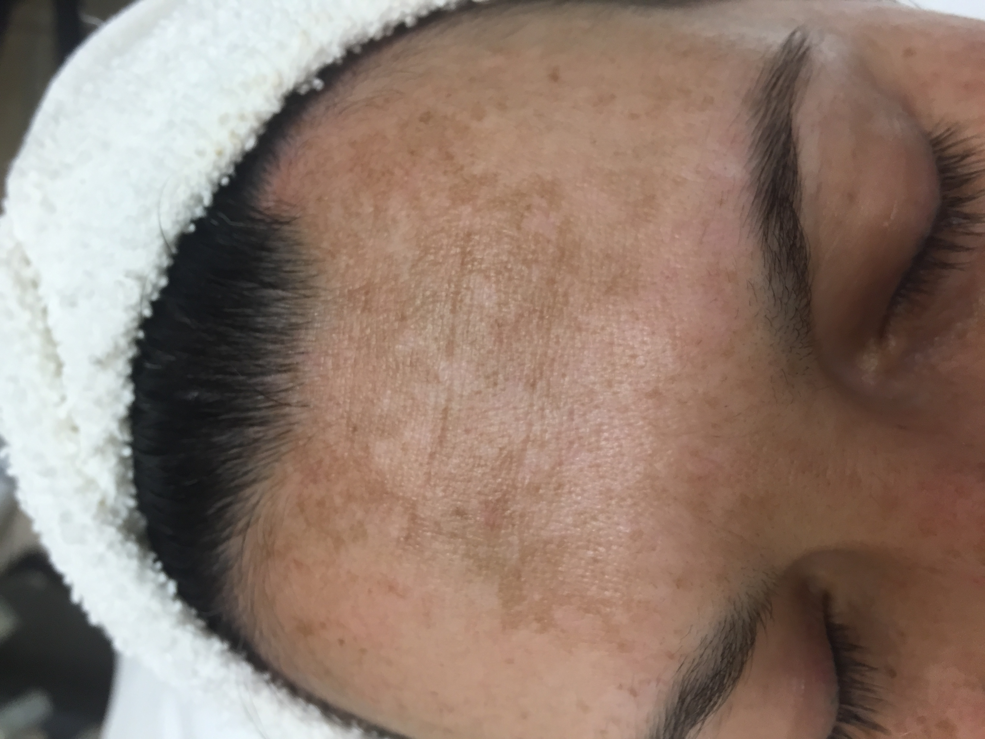Hyper-pigmentation - before brightening treatment